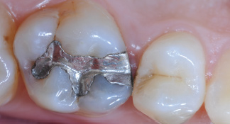 teeth with silver filling