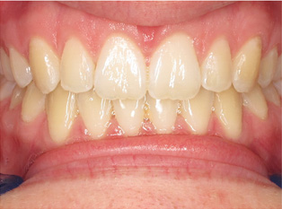 invisalign-after