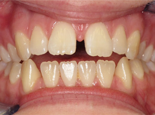 invisalign-before