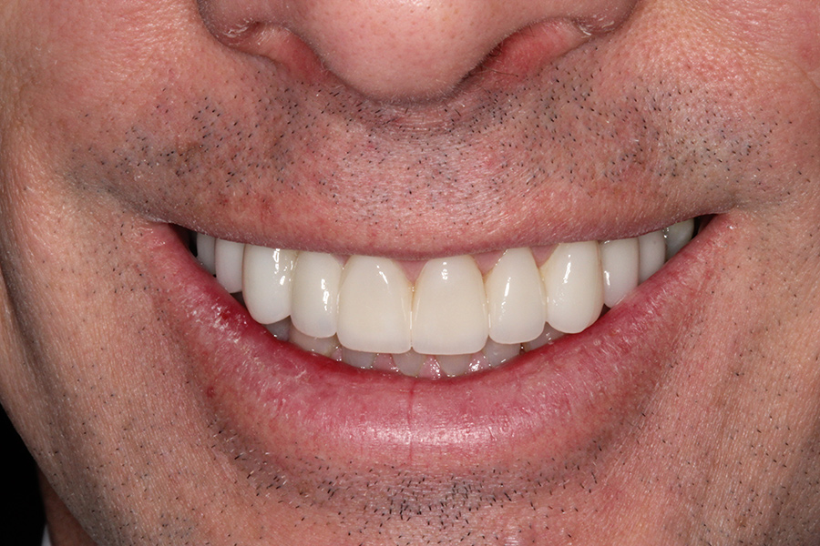 upclose smile